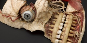 Doctors, Dissection And Resurrection Men @ Museum Of London