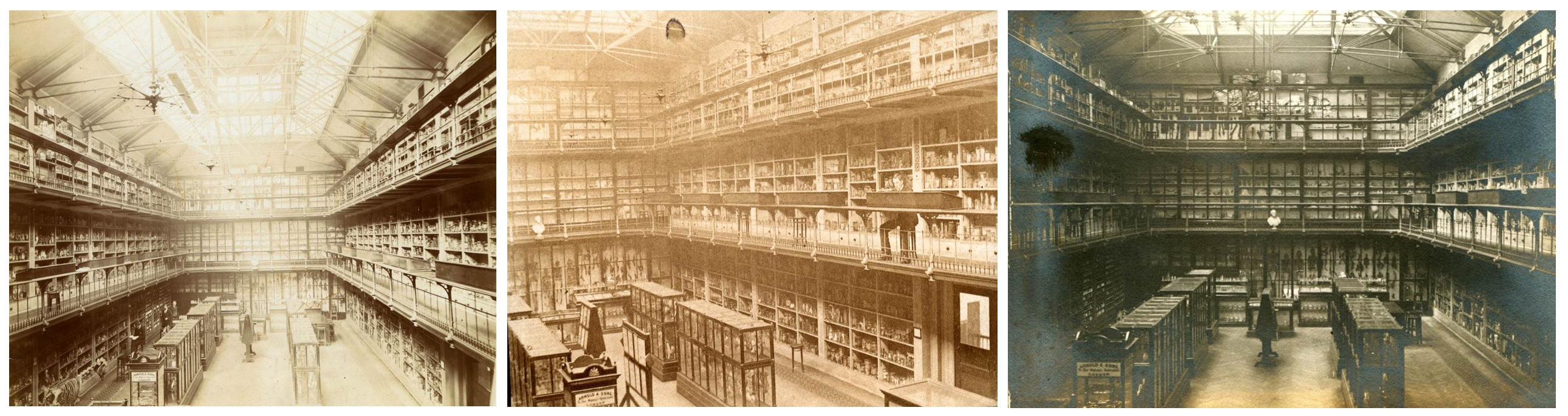 Body Snatchers And Abnormalities In Jars: A History Of Barts Pathology Museum