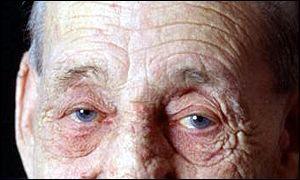 wrinkles300.jpg