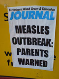 Measles_9Feb09.jpg