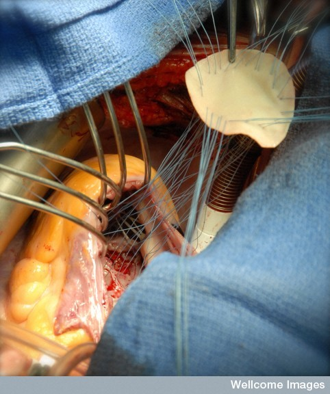 Repair of a ventricular septal defect, by Henry De'ath.