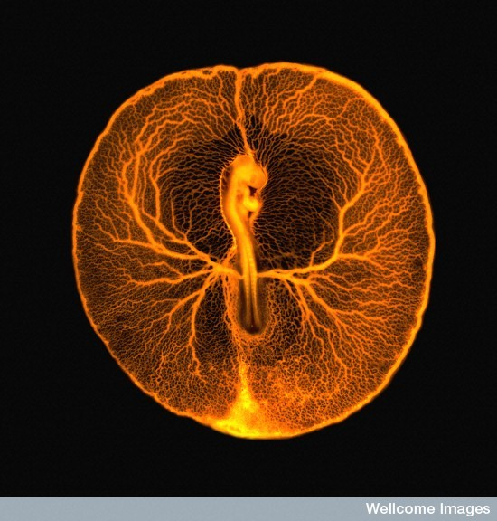 The blood vessels of a developing chicken embryo by Vincent Pasque.