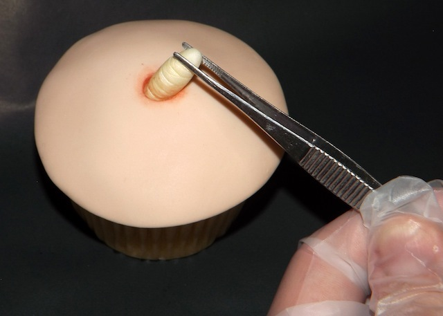 Maggot extraction cupcake.