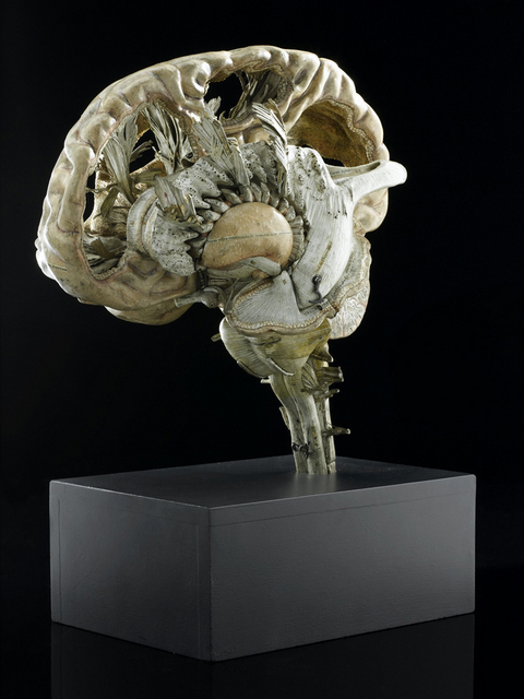 Model of a human brain, sectioned, French, first half 19th century.  View of whole object on black background