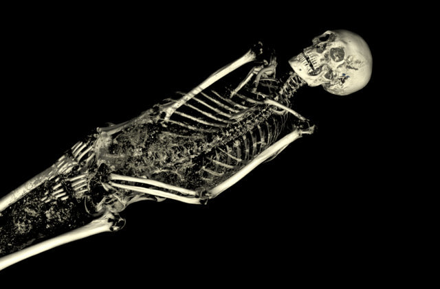 The CT scan of the mummy of an adult male (name unknown), showing his skeleton. © Trustees of the British Museum