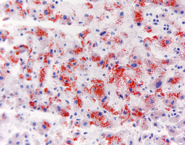 Microsteatosis - Oil Red O