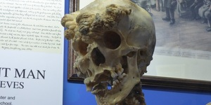 Skeletons, Sketches And Serial Killers: The Royal London Hospital Museum