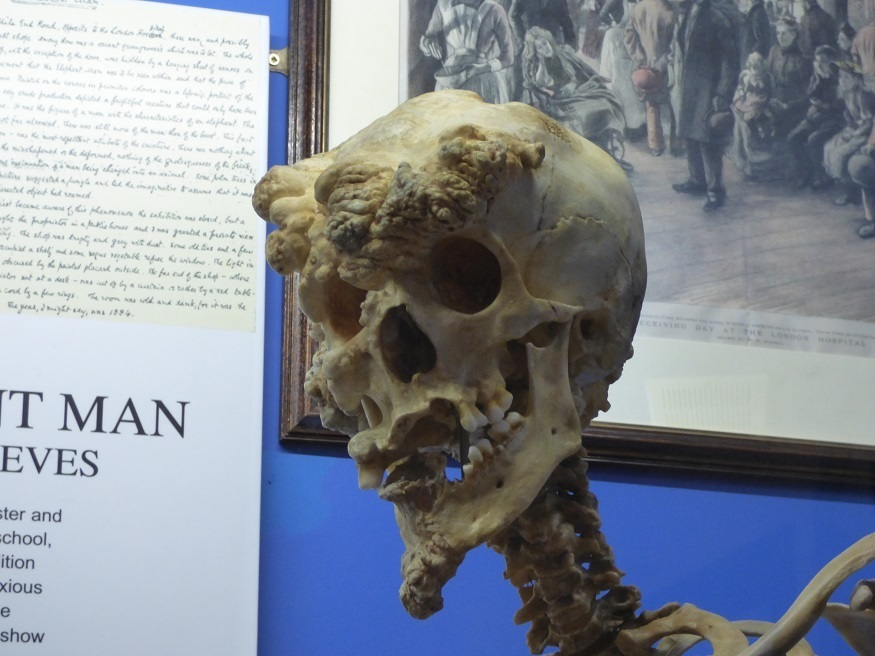 Ever Been Inside The Royal London Hospital Museum?