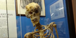 Visit The Hospital Where The 'Elephant Man' Lived And Died